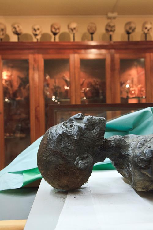 Museo di Anatomia Umana Pisa